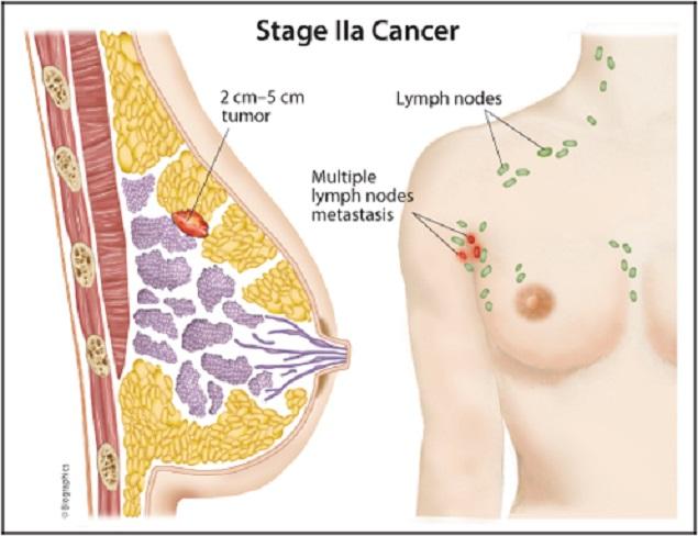 Ung thư vú là gì dấu hiệu nguyên nhân phương pháp điều trị hiệu quả nhất (3)