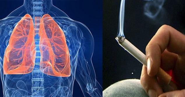 Ung thư phổi dấu hiệu triệu chứng phương pháp điều trị tốt nhất (1)