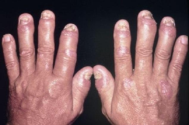Dấu hiệu của bệnh vảy nến thể khớp , phương pháp điều trị như thế nào hiệu quả