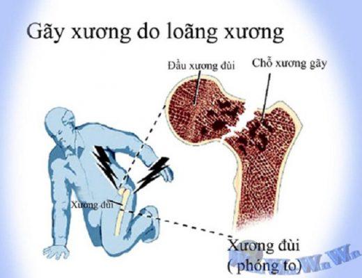 Loãng xương những điều cần biết nếu không muốn mắc phải (1)