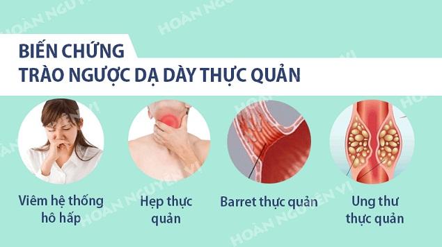 nguyen nhan trieu chung chan doan va dieu tri trao nguoc da day thuc quan (2)