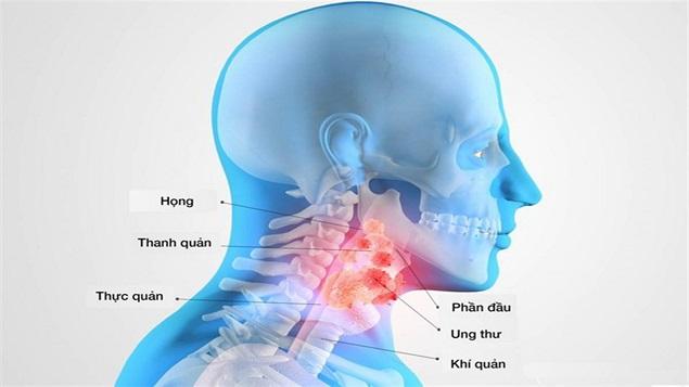 Nguyên nhân ung thư vòm họng những điều cần biết (2)